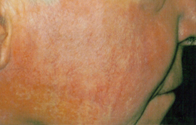 before and after page image1 - rosacea